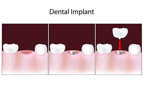 Implant Dentist in Westhampton Beach